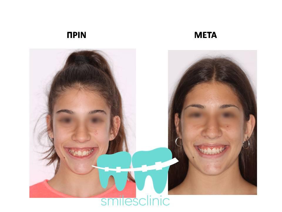 Ορθοδοντική θεραπεία για να χαμογελάς με αυτοπεποίθηση